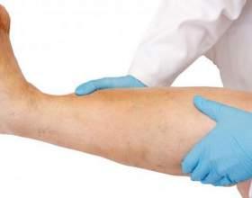 Причини болю і набряку ніг нижче коліна фото
