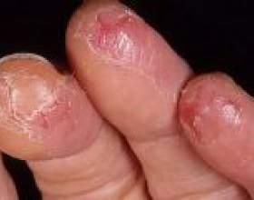 Причини і лікування тріщин на руках і пальцях рук фото