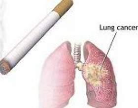 Причини раку легенів у курців фото