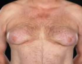 Причини виникнення гінекомастії фото