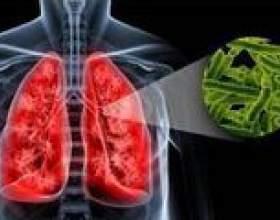 Причини виникнення туберкульозу легенів фото