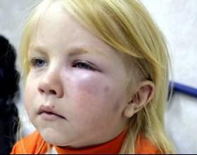 Ознаки та лікування анафілактичного шоку фото