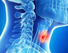 Ознаки раку щитовидної залози фото