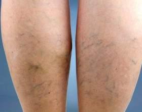 Профілактика варикозу вен на ногах фото