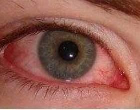 Прояви алергічного кон`юктивіту і методи його лікування фото