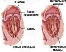 Пролапс мітрального клапана фото