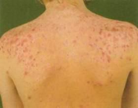 Прищі на плечах: причини і методи лікування фото