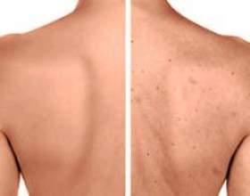 Прищі на спині: причини і лікування фото