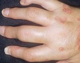 Псоріатичний артрит фото