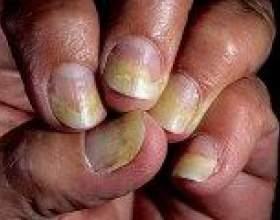 Псоріаз нігтів на руках і ногах, лікування фото