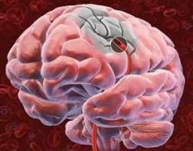 Рак головного мозку фото