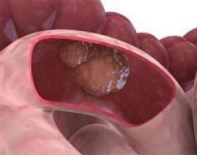 Рак кишечника фото