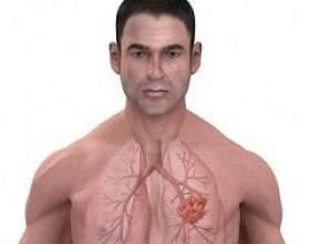 Рак легенів фото