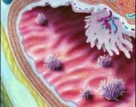 Рак сечового міхура фото