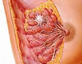 Рак молочної залози фото
