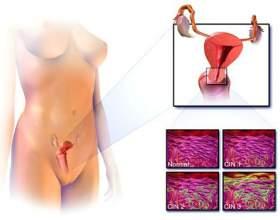 Рак шийки матки: ознаки і симптоми фото
