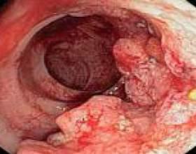 Рак товстої кишки - лікування і прогнози фото