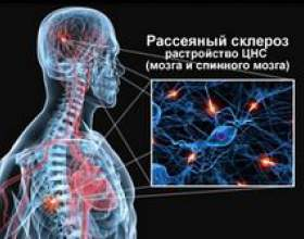 Розсіяний склероз фото