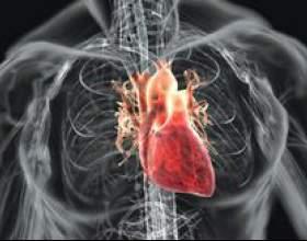 Ревматизм серця фото