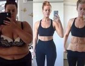 Різке схуднення призвело до операції з видалення шкіри фото