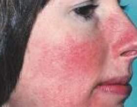 Розацеа на обличчі - причини, лікування фото