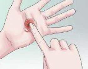 Рожеві виділення на ранніх термінах вагітності фото