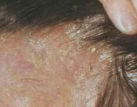 Себорея на голові: ознаки, причини, методи позбавлення фото