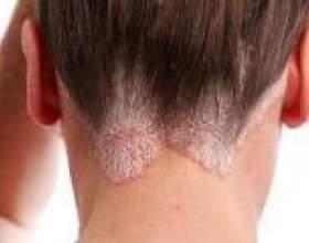 Себорейний дерматит (себорея), причини, лікування фото