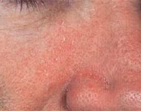 Себорейний дерматит (жирна екзема) на обличчі: причини розвитку, лікування та профілактика фото