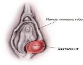 Шишка на статевий губі, що це? фото