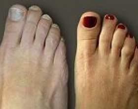 Шишки на ногах: причини, симптоми, лікування фото
