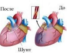 Шунтування судин серця (аортокоронарне шунтування) фото