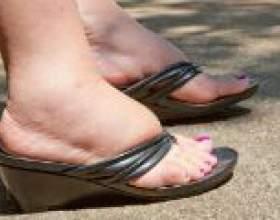 Сильно набрякають ноги, що робити? фото