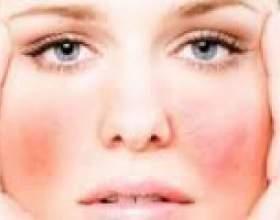 Симптоми і лікування алергії на шкірі обличчя фото