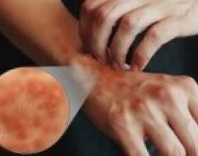 Симптоми і лікування атопічного дерматиту фото