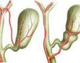 Симптоми і лікування перегину жовчного міхура фото