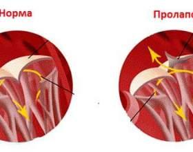 Симптоми і лікування пролапсу мітрального клапана фото