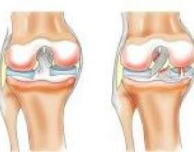 Симптоми і лікування розриву меніска колінного суглоба фото