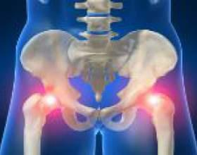 Симптоми і лікування трохантеріта тазостегнового суглоба фото