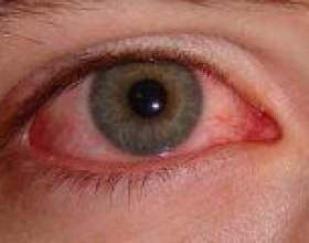 Симптоми і лікування вірусного кон`юктівіта фото