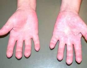 Симптоми і способи лікування алергії на холод фото