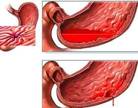 Симптоми і способи лікування гастродуоденита фото