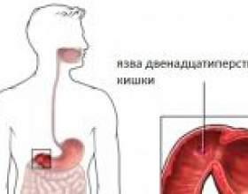 Симптоми загострення виразки дванадцятипалої кишки фото