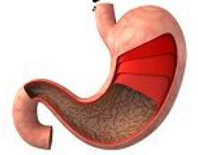 Симптоми при раку шлунка фото
