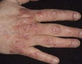 Симптоми псоріазу: прояв захворювання на різних частинах тіла фото