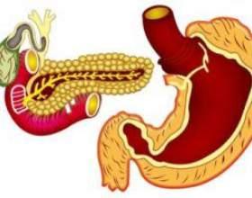 Симптоми раку підшлункової залози фото