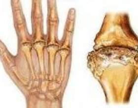 Симптоми ревматоїдного артриту фото
