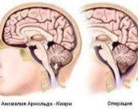 Синдром арнольда-кіарі: причини, симптоми, лікування фото