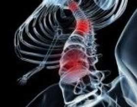 Синдром броун-секара: причини, симптоми, лікування фото