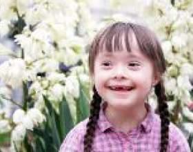 Синдром дауна - причини, симптоми, діагностика та лікування фото